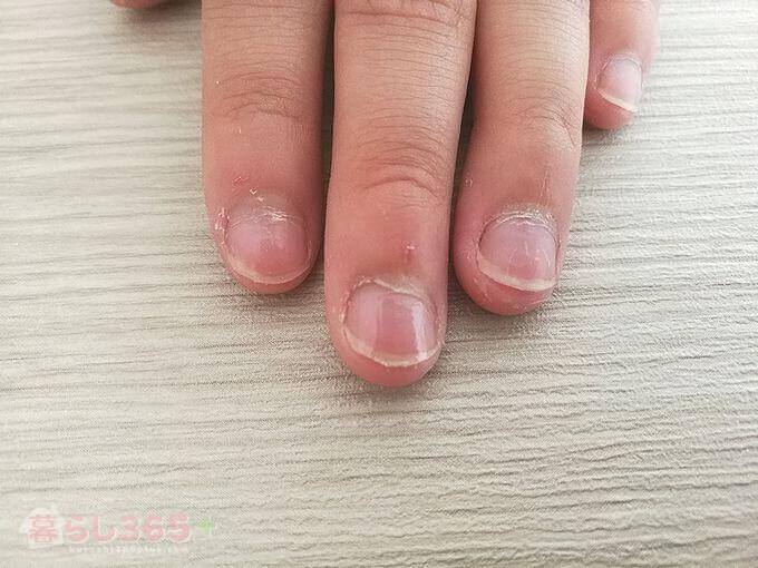 苦いマニキュア[バイターストップ]を塗った指