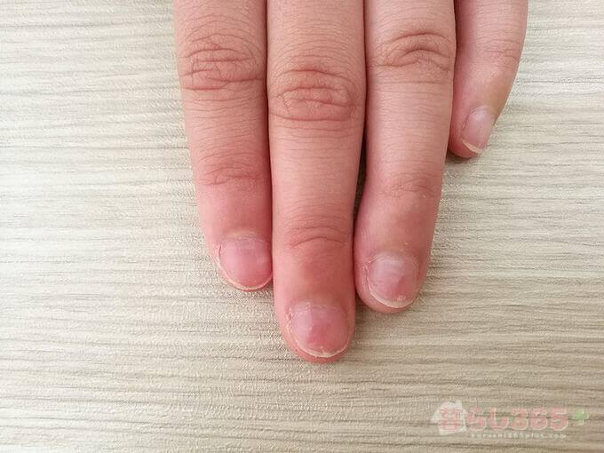 苦いマニキュア[バイターストップ]を塗り始めて1ヶ月後の指